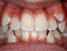 Treatment with full braces was initiated at age eleven and was completed in 1½ years.