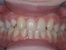 The two upper lateral incisors were congenitally missing and both cuspids had moved forward into the wrong position. After the malocclusion was corrected with braces, implants with crowns were placed to compensate for the missing teeth.