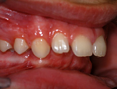 This patient's front teeth were protruding by 14.0 mm due to a retrusive lower jaw. At age 14 the lower jaw was advanced to a normal position in seven months with a growth modifying functional appliance. Only 13 months of banded therapy was necessary to fully correct this severe malocclusion.
