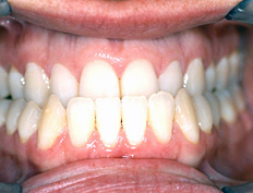 The bottom teeth were outside the top teeth. Treatment with full braces was started at age 34 and was completed in 1½ years.